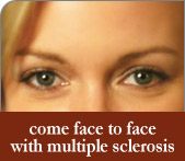 come face to face with multiple sclerosis